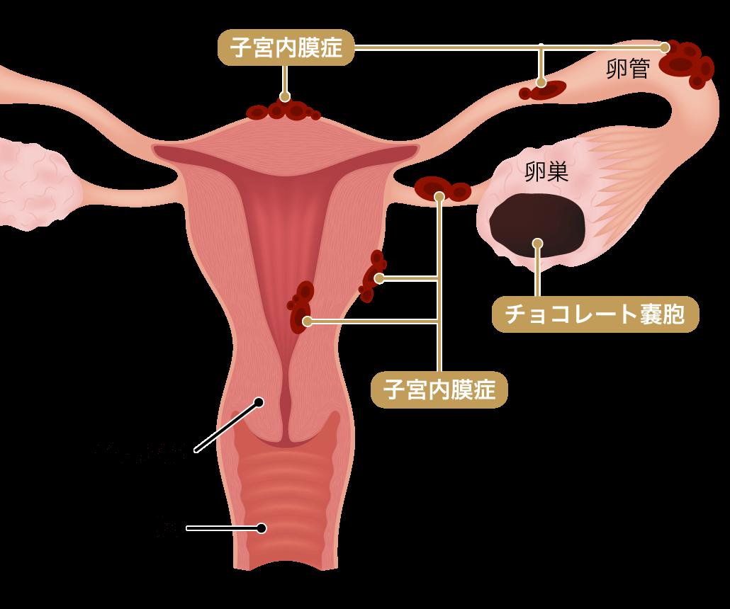 子宮 内 膜 症 症状