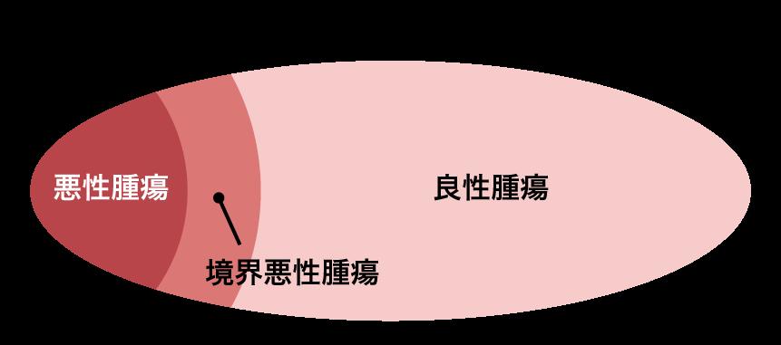 再発 卵巣 嚢腫 卵巣腫瘍とは…約9割を占める卵巣嚢腫の症状・検査法 [婦人病・女性の病気]